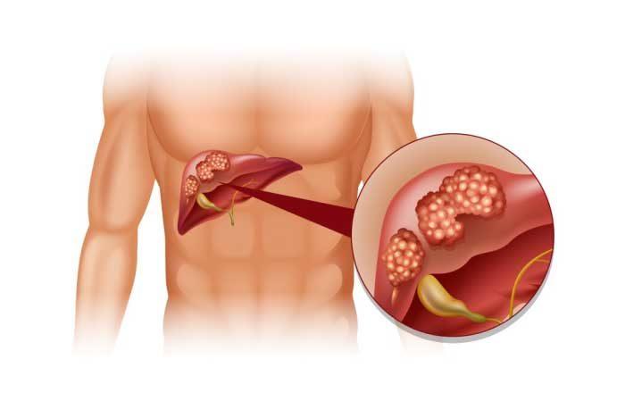simptome cancer de ficat