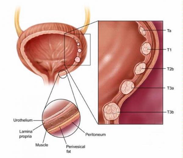 cancerul de vezica se vindeca
