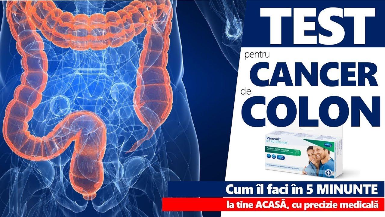 ce simptome ai la cancerul de colon toxoplasma gondii tratament