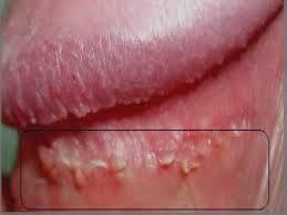 human papillomavirus (hpv) & kutil kelamin)