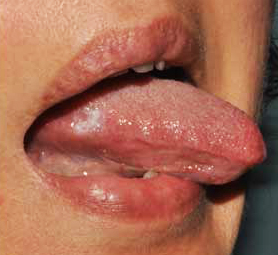 hpv symptoms of the throat squamous papilloma growth