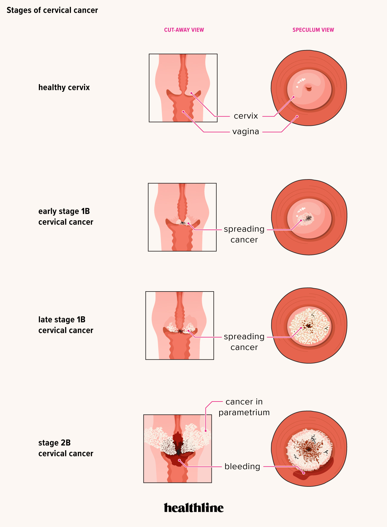 hpv pre cancer symptoms)