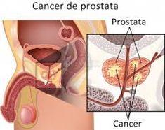 cancer de prostata metastaze)