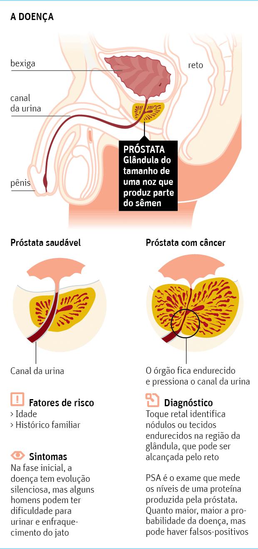 cancer de prostata avancado tem cura)