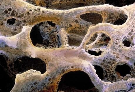 rectal cancer metastases