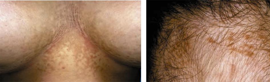papilomatosis de piel