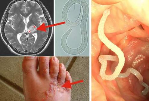 paraziti din corpul omului