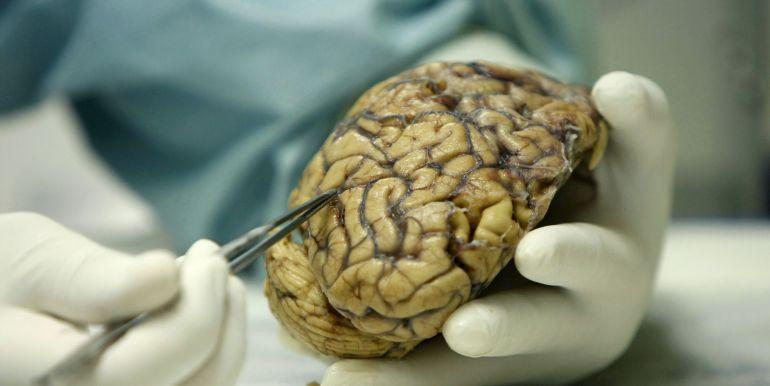 Tumorile cerebrale: Cauze, simptome si diagnostic