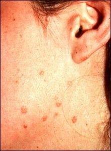 virus del papiloma en la cara)