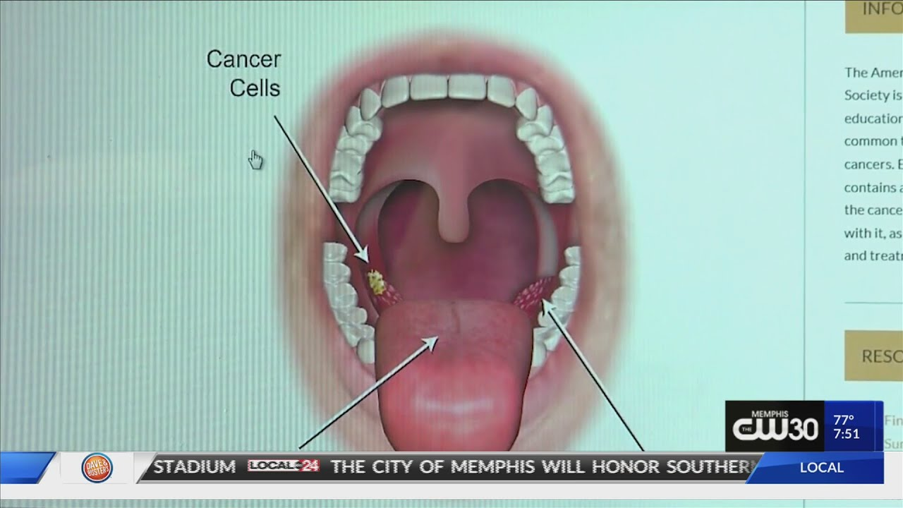 what does hpv throat cancer look like
