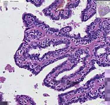 intraductal papilloma related to cancer)