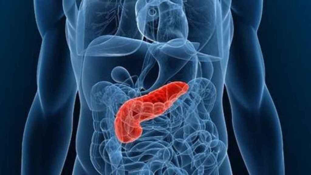 ce este cancerul de pancreas