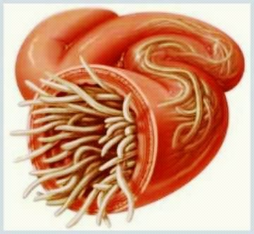 eliminare viermi intestinali copii