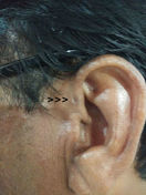 bilateral preauricular papillomas)