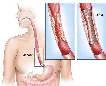 cancer pe esofag)