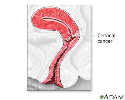 hpv cervical removal