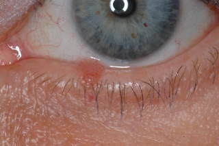 papiloma palpebral causas