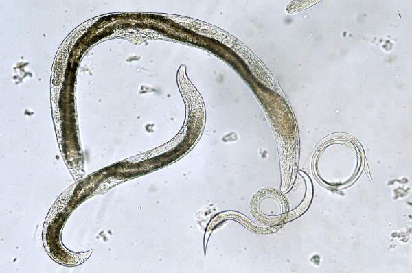 tratament medicamentos paraziti intestinali adulti)