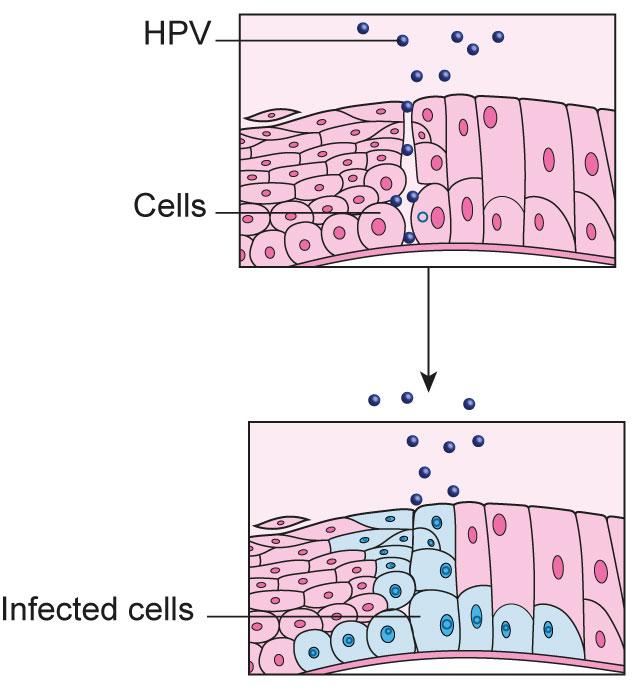 hpv cervical cancer pictures
