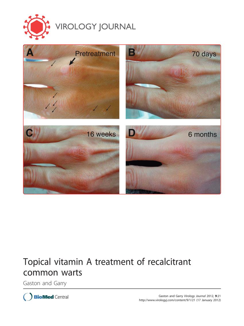 TUMORILE PENIENE - tumorile penisului - tehnici de tratament