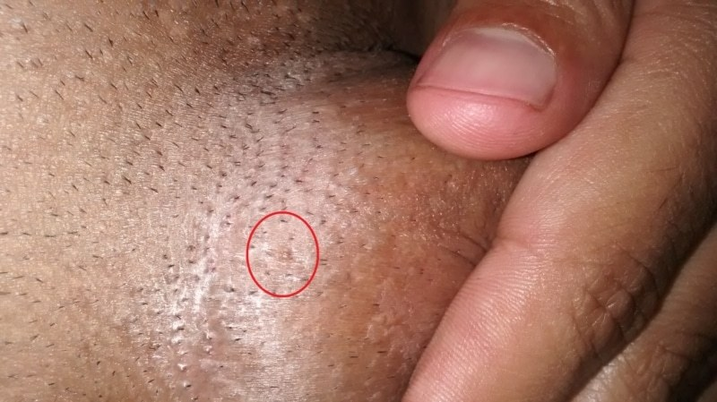 hpv infection genital warts)