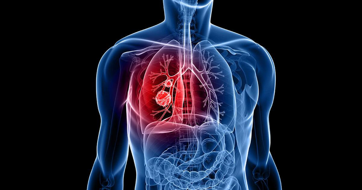 cancer plamani stadiul 4