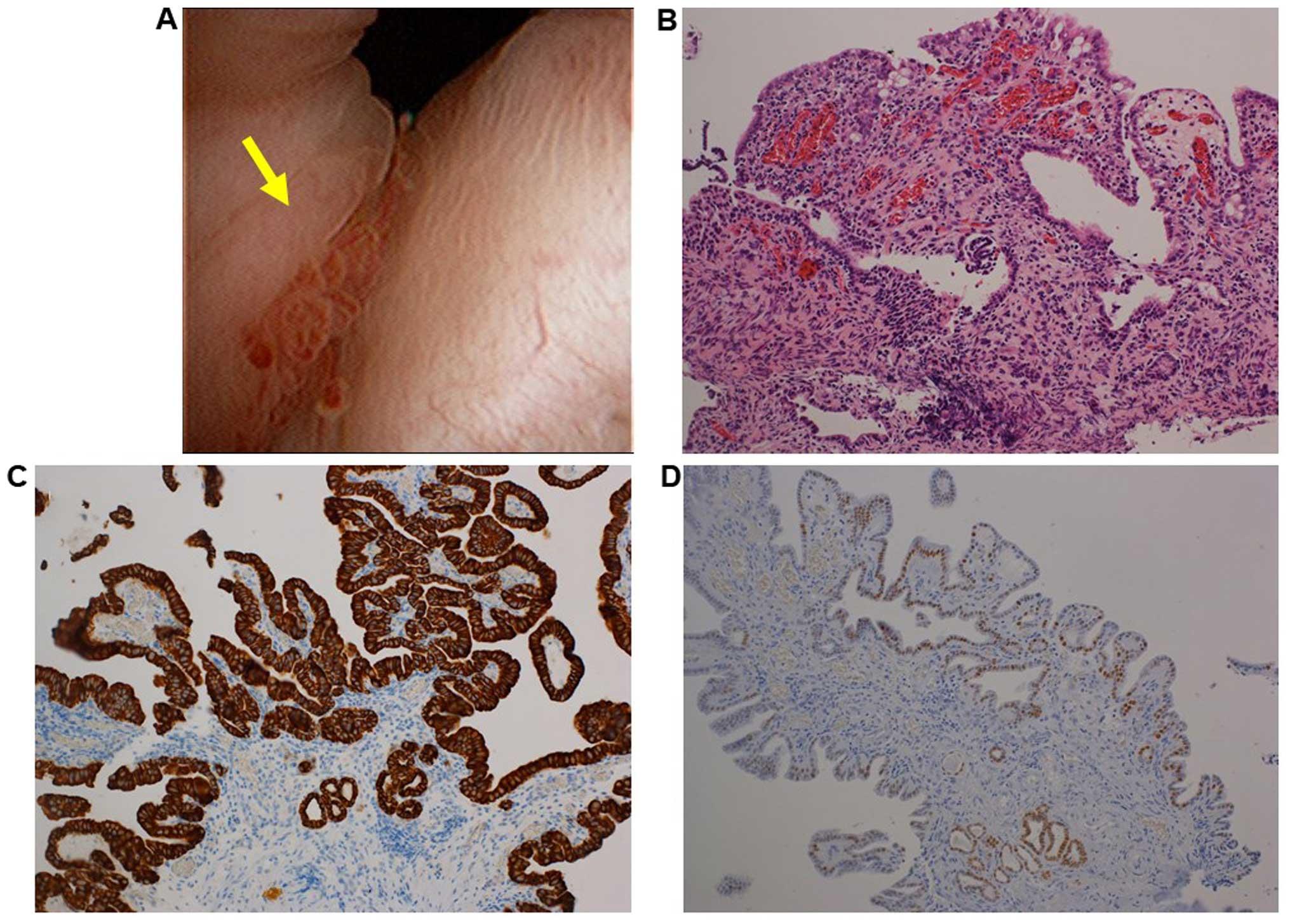 papillary lesion urethra)