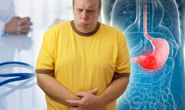 pancreatic cancer acid reflux)