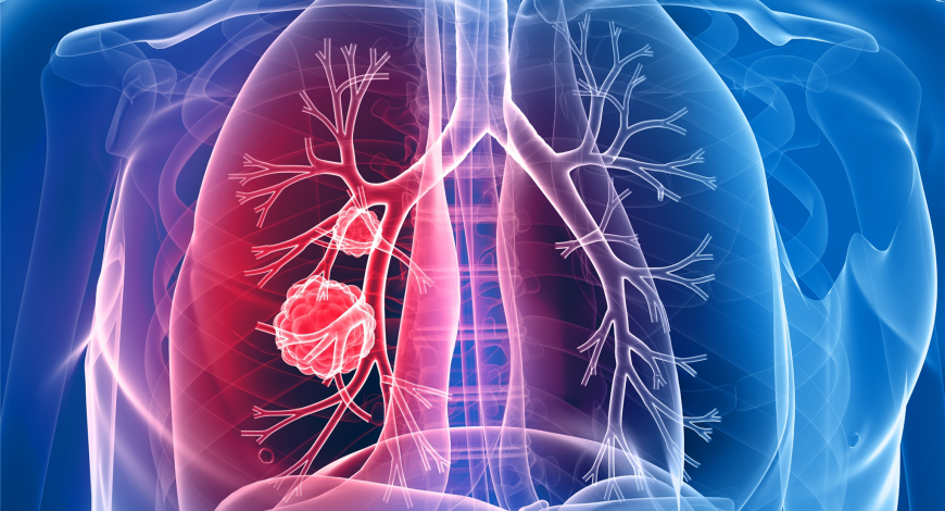Cancerul pulmonar non-microcelular