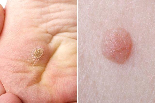 virus papiloma humano y sintomas warts on foot causes