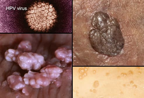 hpv and herpes difference