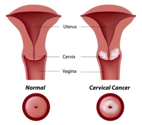 Cancerul de col uterin nu este ereditar!