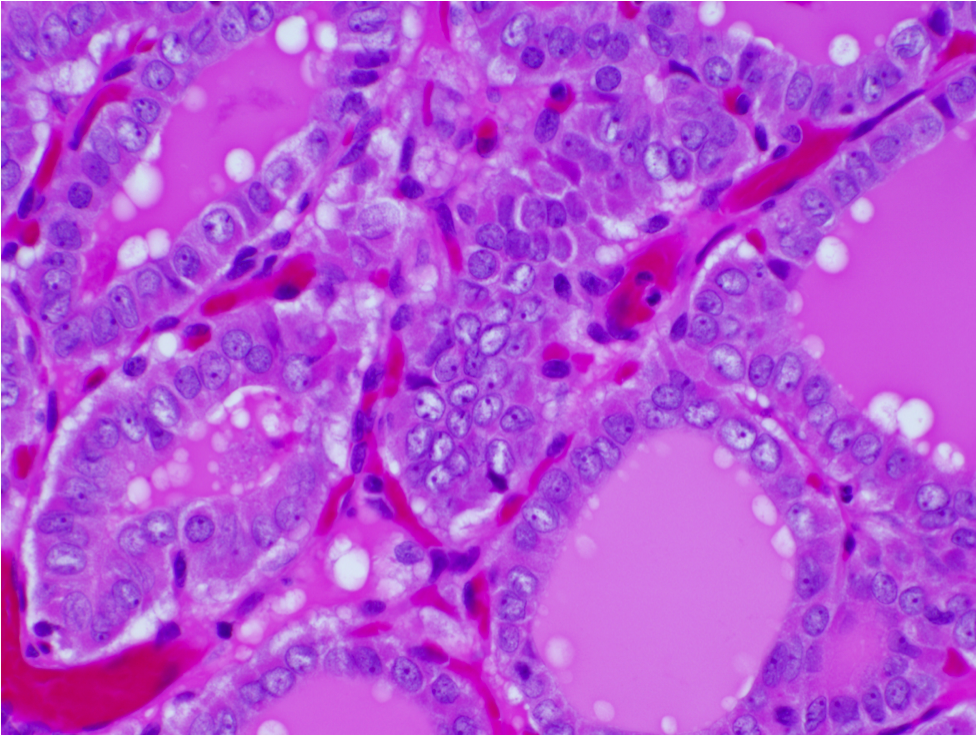 papillary thyroid carcinoma follicular variant histology)