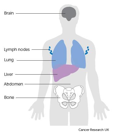 cancer abdominal lymph nodes)