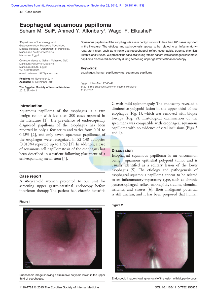 what causes esophageal papilloma