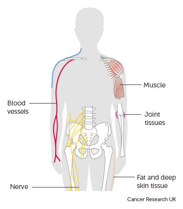 cancer synovial sarcoma)