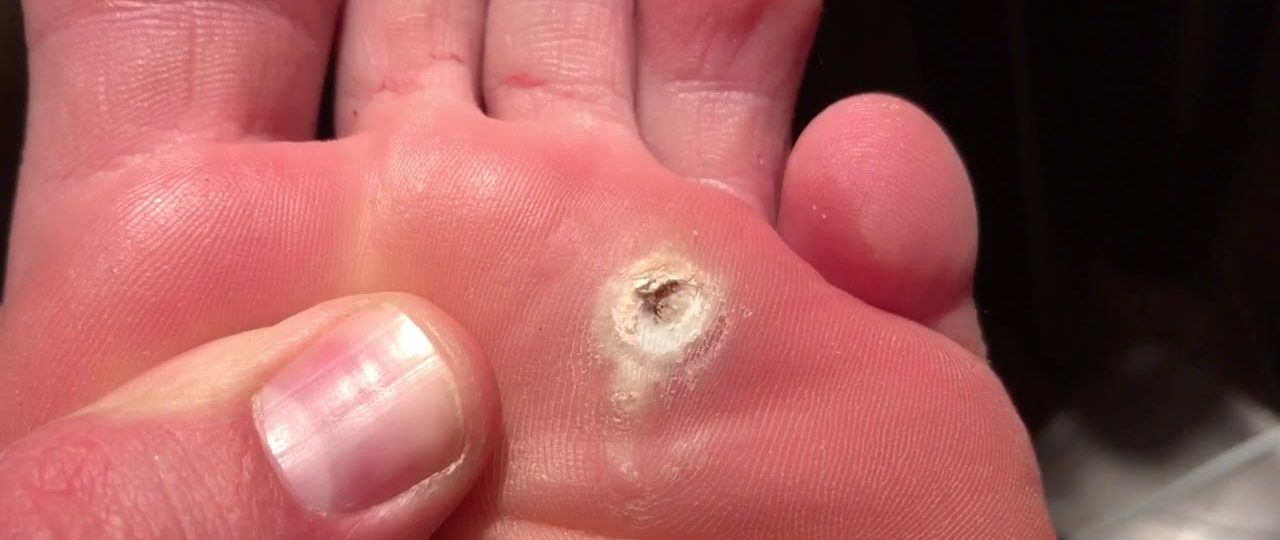 foot wart define