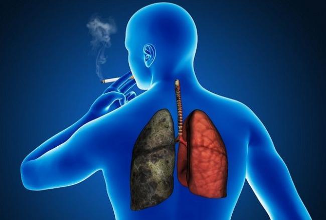 cancerul pulmonar diagnostic)