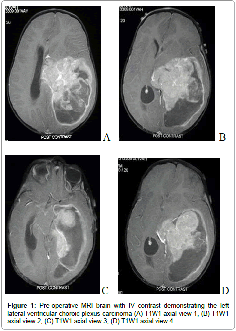 choroid plexus papilloma radiation therapy helminth infection and type 1 diabetes