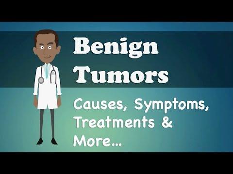 benign cancer symptoms)