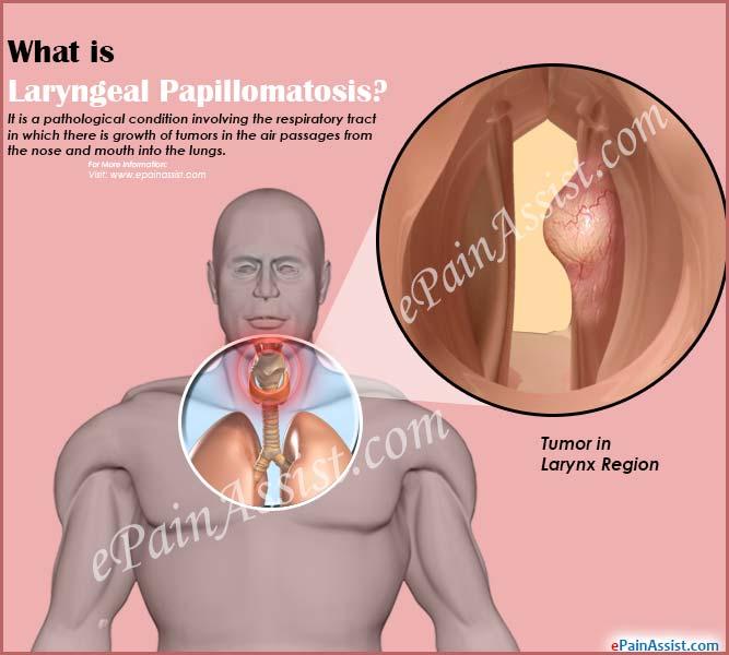 treatment of papillomatosis