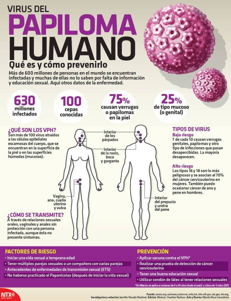 virus papiloma humano que es