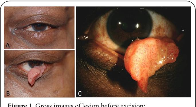 papilloma eye infection hpv warzen mittel