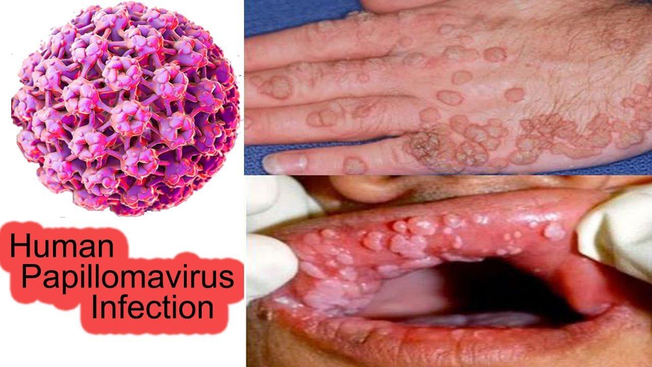 papillomavirus porteur homme