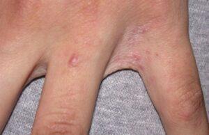 scabie simptome hpv hsv nedir