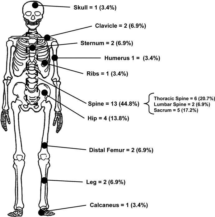 bone metastases uterine cancer)