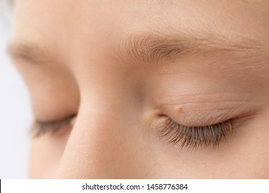 papilloma eye infection)