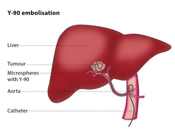 hepatocellular cancer y90