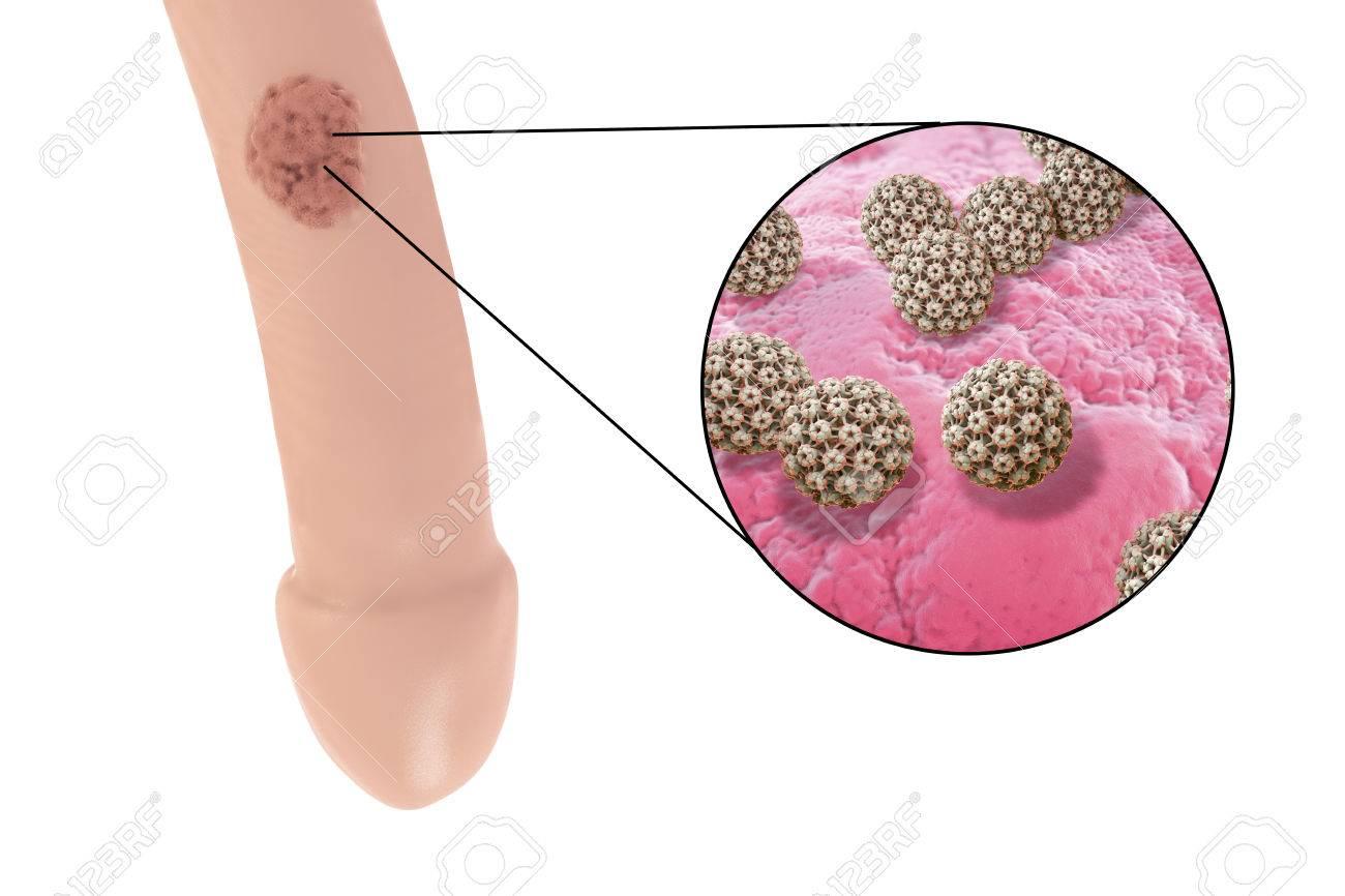 human papillomavirus for warts