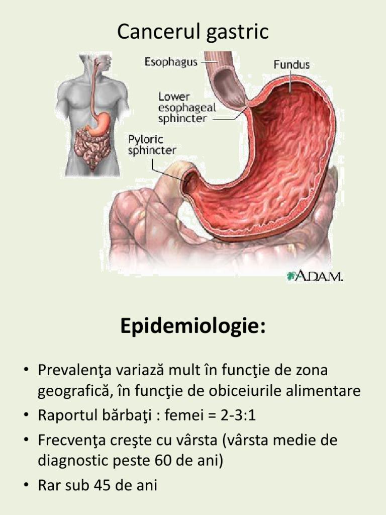 cancerul gastric curs amg